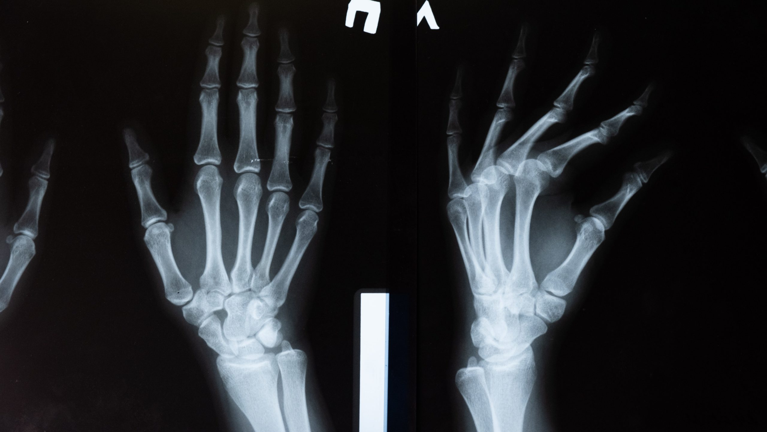 Copper gluconate supports bone health